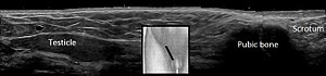 Ultrasonography of cryptorchidism - annotated.jpg