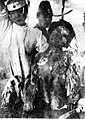 Victim of Atomic Bomb of Nagasaki 01.jpg