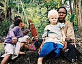 Albinistic girl papua new guinea.jpg