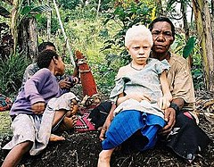 Albinistic girl from Papua New Guinea