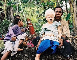 meaning of albinism