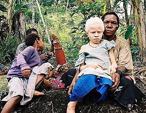 Melanin - Albinism occurs when melanocytes produce little or few melanin. This albino girl is from Papua New Guinea.