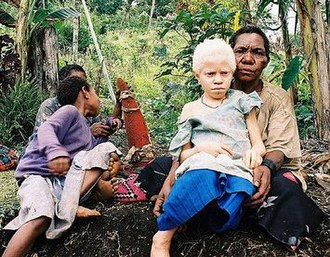 Melanin - Albinism occurs when melanocytes produce little melanin. This albino girl is from Papua New Guinea.