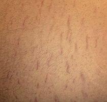 Belly Strech Marks.jpg