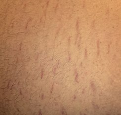 Belly Strech Marks.jpg