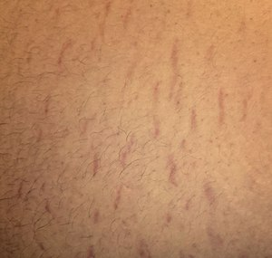 Stretch marks on the abdomen.