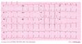 De-AW00001 (CardioNetworks ECGpedia).png