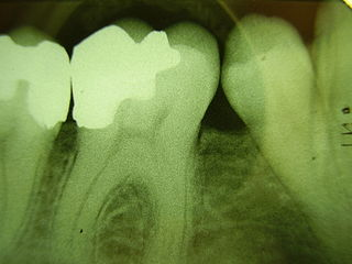 dental implant to replace a missing tooth