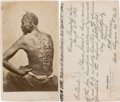 Escaped-Slave-Gordon-CDV-Portrait,-1863.png