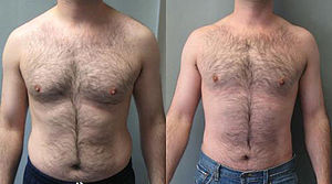 English: A combination of gynecomastia correct...