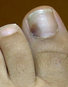 Nail Disease Onychoptosis