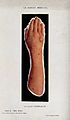 Hand and arm infected with scabies. Process print. Wellcome V0030044.jpg