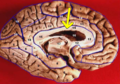 Human brain inferior-medial view description 2-emphasizing-corpus-callosum.png