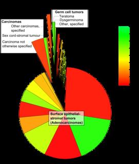 Serous cystadenocarcinoma cystadenocarcinoma that derives from epithelial cells originating in glandular tissue forming serous lesions