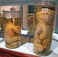 Istituto di anatomia patologica, museo, campioni 07 feti malformati.JPG