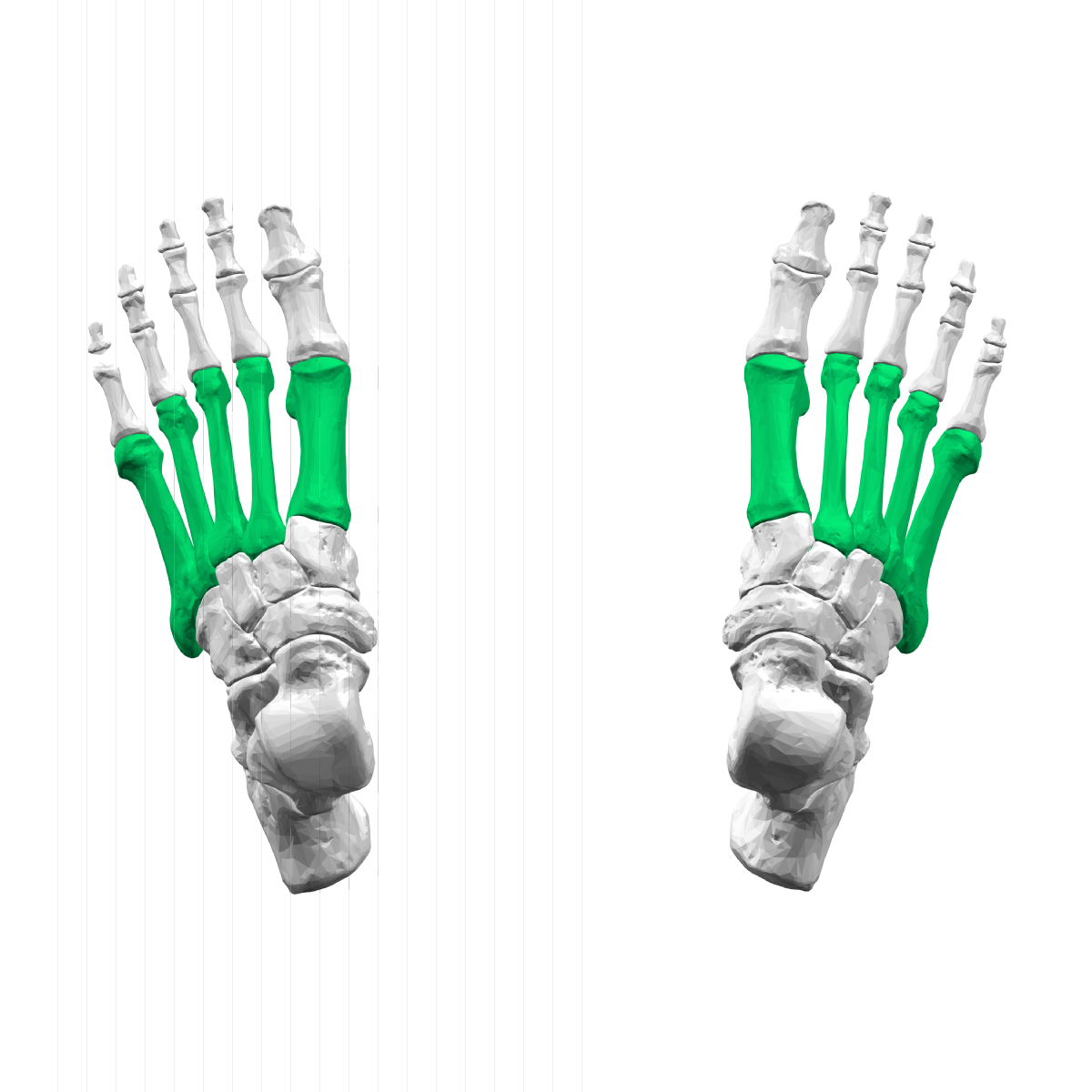 Metatarsal bones - Wikipedia