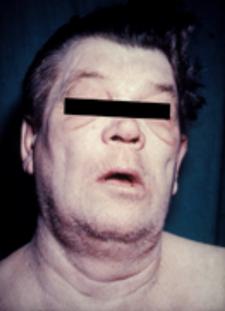 Myxeoidní obličej a tvář bez výrazu jako obraz hypothyreoizmus