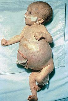 Neuroblastoma infant.jpg