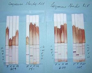 English: Comparison of Plasmodium Lactate Dehy...