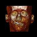 Parry Romberg syndrome CT reconstruction, soft tissues.jpg