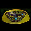 Pelvic MRI 06 25.jpg