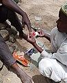 Santé des ongles à Maroua.jpg