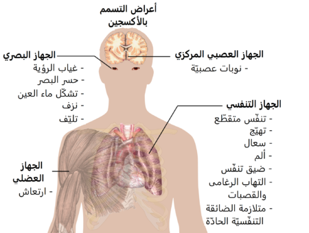 A diagraph showing a man torso and listing symptoms of oxygen toxicity: Eyes– visual field loss, near)sightedness, cataract formation, bleeding, fibrosis; Head– seizures; Muscles– twitching; Respiratory system– jerky breathing, irritation, coughing, pain, shortness of breath, tracheobronchitis, acute respiratory distress syndrome.