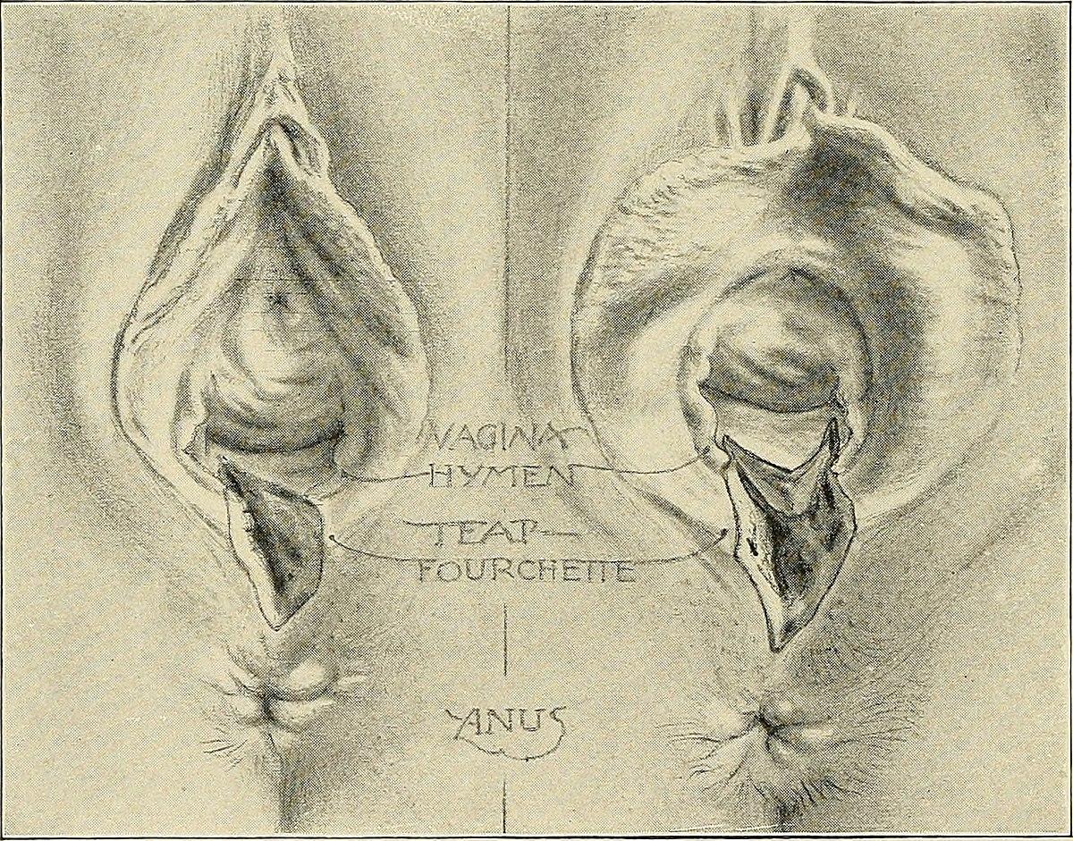 Perineal tear - Wikipedia