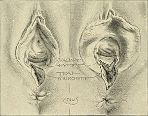 Perineal tear - Wikipedia