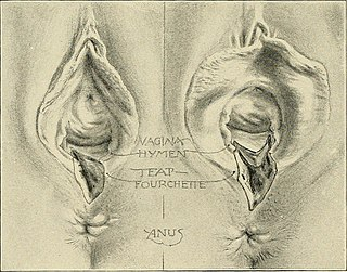 Perineal tear Childbirth related injury