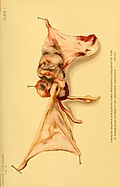 Treatise on gynaecology - medical and surgical (1894) (14593773650).jpg