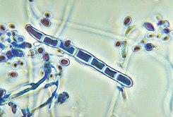 Trichophyton rubrum var rodhaini.jpg