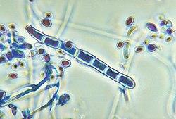 trichophyton rubrum behandling