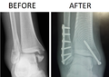 Trimalleolar Ankle Fracture Xray shown before surgery and after surgery.png