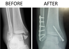 X-ray of trimalleolar fracture repair before and after ORIF surgery