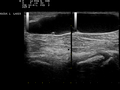 Ultrasound Scan ND 0125091859 0929030.png