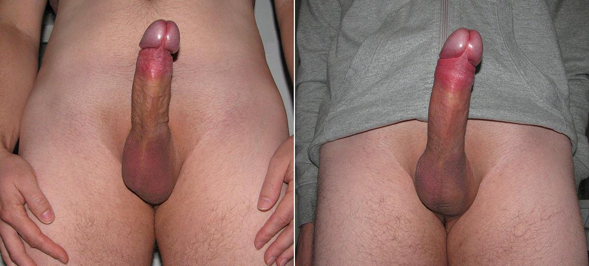 Karamojong penis