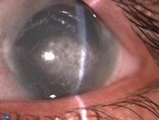 Band-keratopathy left-eye.png