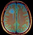 Brain MRI 131749 rgbca-.png