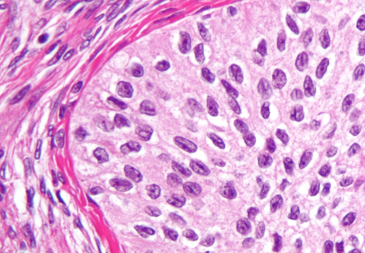 Surface epithelial-stromal tumor - Wikipedia