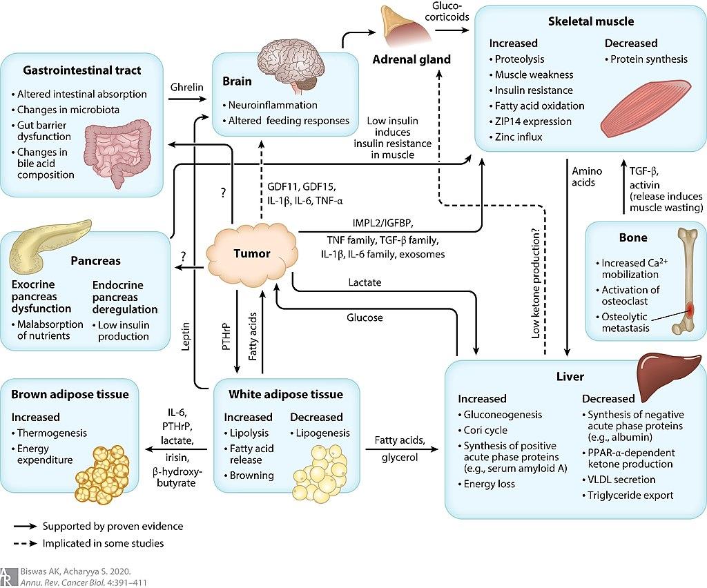 Диаграма на кахексия, свързана с рак