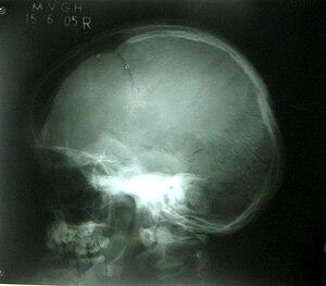 Cleidocranial2.jpg