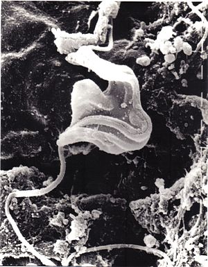 Kinetoplastida - Image: Cryptobia helicis x 15,000 Scanning EM
