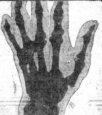 Deacon McGuire - McGuire's gnarled, knotted left hand, x-rayed in 1906
