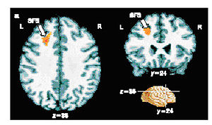 Francis Crick - Results from an fMRI experiment in which people made a conscious decision about a visual stimulus. The small region of the brain coloured orange shows patterns of activity that correlate with the decision making process. Crick stressed the importance of finding new methods to probe human brain function.