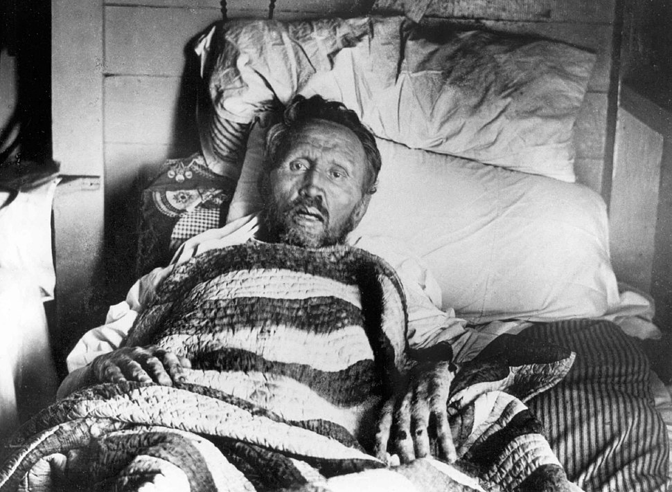 Father Damien on his deathbed
