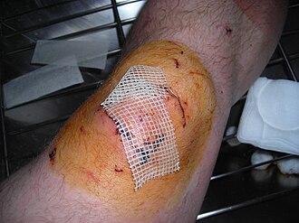 Povidone-iodine - Wound area covered in povidone-iodine. Gauze has also been applied.