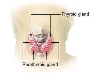 Differential diagnoses of depression - Image: Illu thyroid parathyroid