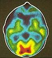 PET Slice of Brain.jpg