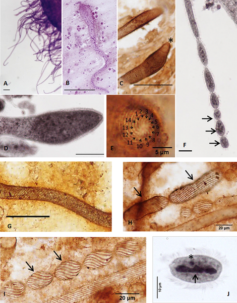 File:Parasite160019-fig1 - Chromidina spp. (Oligohymenophorea, Opalinopsidae), parasites of cephalopods of the Mediterranean Sea.png